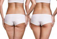 7 modi per combattere la cellulite in modo naturale